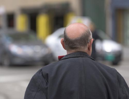 Le nuove tecniche per il trapianto di capelli in Turchia